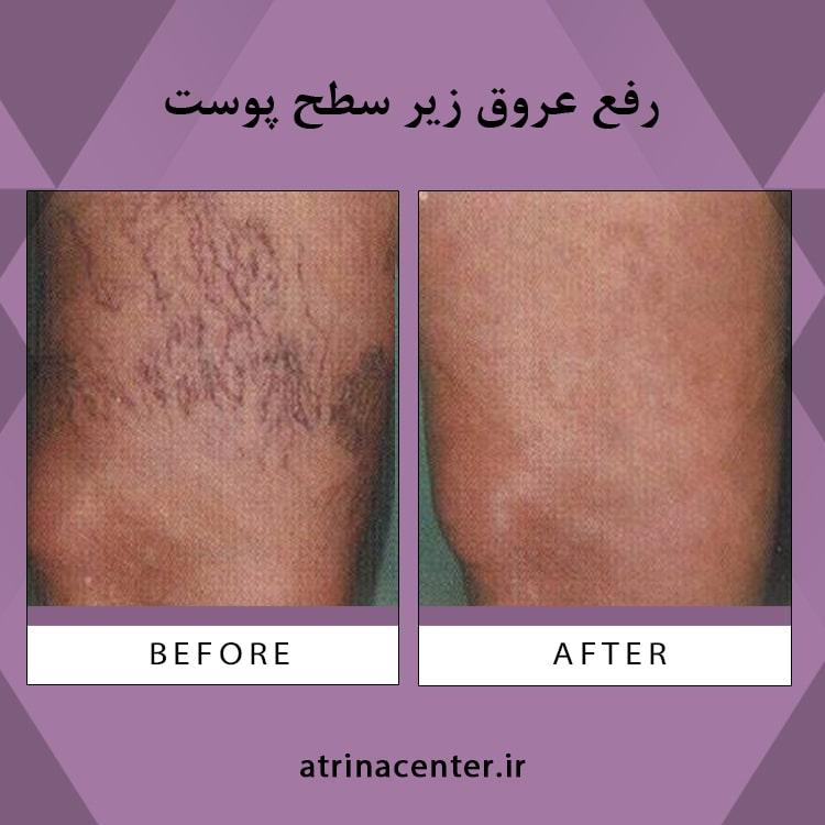 رفع عروق ریز پوستی